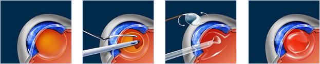 Cataract Surgery Maryland