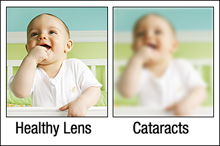 What is Cataract