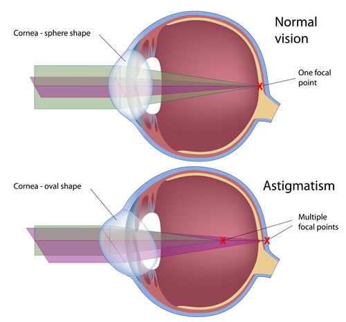 Cornea Astigmatism | Midshore Surgical Eye Center
