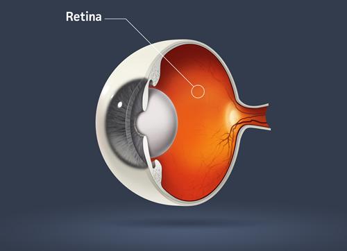 Retina Maryland | Midshore Surgical Eye Center